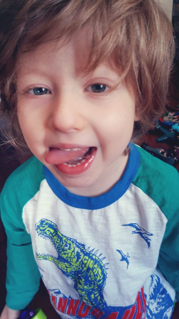 Milz langue